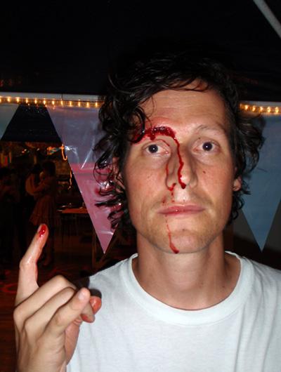 Bloody head wound via arkitipintel-com